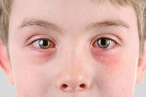 Sintomi Herpes Oftalmico